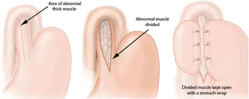 Difficulty in Swallowing: Can it be Achalasia Cardia?